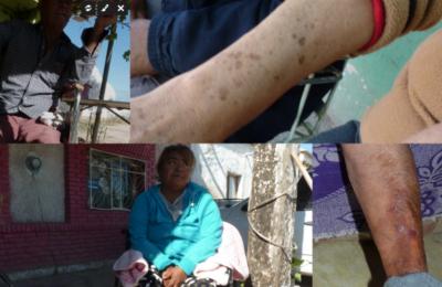 [Artículo] Por años bebieron agua de pozos llenos de arsénico. Hoy el cáncer invade a habitantes en Coahuila